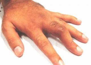 Ảnh 2 của Sưng ngón tay