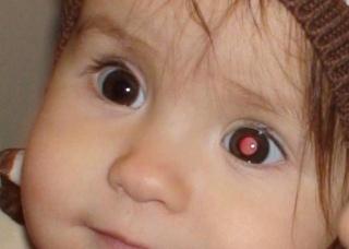 Ảnh 3 của Retinoblastoma