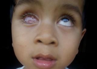 Ảnh 4 của Retinoblastoma