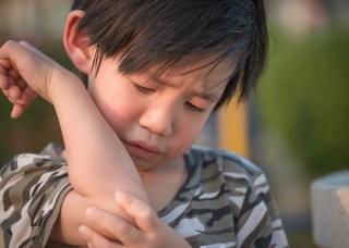 Ảnh 3 của Sai khớp đầu xương quay ở trẻ em