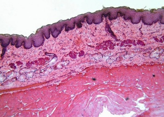 Ảnh 2 của Squamous Cell Carcinoma