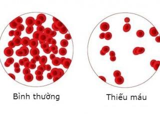 Ảnh 3 của Thiếu máu do thiếu sắt
