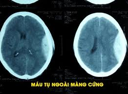 Ảnh 3 của Subdural Hematoma