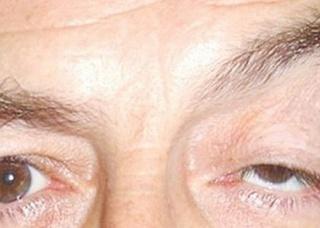 Ảnh 2 của Sụp mí mắt do tuổi già