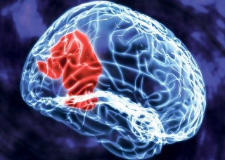 Ảnh 4 của Temporal Lobe Epilepsy