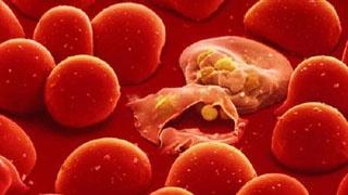 Ảnh 2 của Thiếu máu beta Thalassaemia