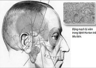 Ảnh 1 của Temporal Arteritis