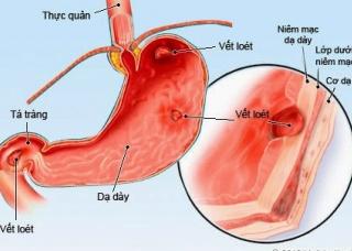 Ảnh 1 của Viêm dạ dày