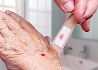 Ảnh 1 của Vết cắt ở bàn tay