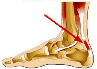 Ảnh 3 của Viêm gân gót chân