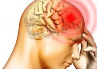 Ảnh 3 của Viêm màng não do Haemophilus
