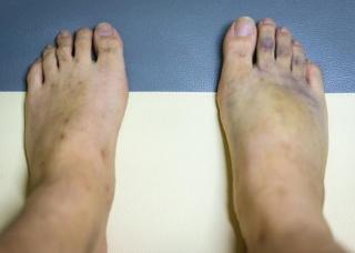 Ảnh 4 của Vết thương thủng ở bàn chân