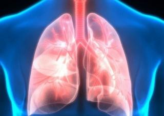 Ảnh 2 của Viêm phổi hít phải