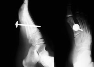 Ảnh 1 của Vết thương thủng ở bàn chân