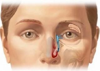Ảnh 4 của Ung thư biểu mô xoang hàm trên