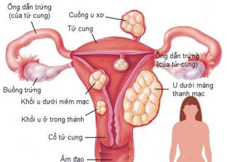 Ảnh 3 của Ung thư nội mạc tử cung