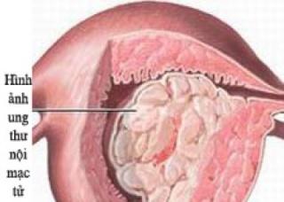 Ảnh 4 của Ung thư nội mạc tử cung