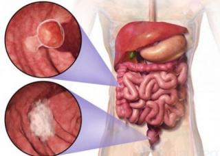 Ảnh 3 của Ung thư ruột già