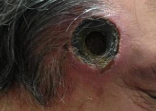Ảnh 1 của Vết thương thủng ở da đầu