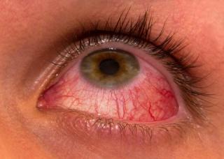 Ảnh 1 của Viêm mống mắt