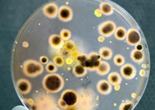 Ảnh 2 của Viêm phổi cấp do vi khuẩn Legionella
