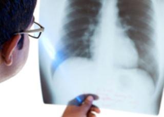 Ảnh 5 của Viêm phổi cấp do vi khuẩn Legionella