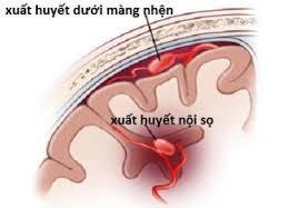 Ảnh 2 của Xuất huyết nội sọ