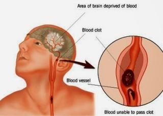 Ảnh 1 của Xuất huyết não
