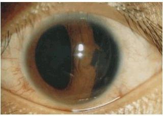 Ảnh 2 của Vết thương thủng ở mí mắt