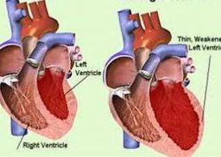 Ảnh 2 của Viêm cơ tim