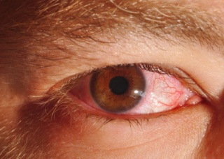 Ảnh 2 của Viêm mống mắt
