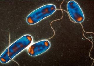 Ảnh 3 của Viêm phổi cấp do vi khuẩn Legionella