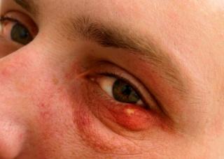 Ảnh 1 của Viêm tế bào ổ mắt