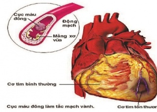 Ảnh 3 của Viêm cơ tim