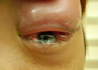 Ảnh 4 của Viêm tế bào ổ mắt