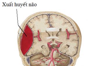 Ảnh 4 của Xuất huyết não