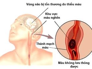 Ảnh 3 của Đột quỵ do thiểu năng động mạch đốt sống nền