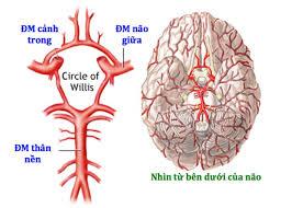 Ảnh 4 của Đột quỵ do thiểu năng động mạch đốt sống nền