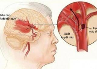 Ảnh 1 của Đột quỵ do huyết khối