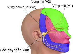 Ảnh 3 của Đau dây thần kinh tam thoa