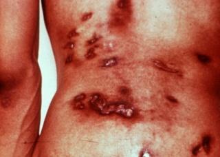 Ảnh 2 của Bệnh nấm Coccidioidomycosis