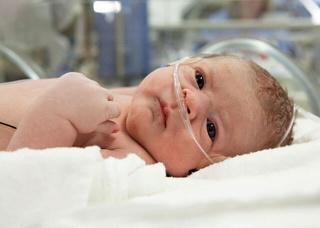 Ảnh 3 của Bệnh võng mạc ở trẻ sinh non