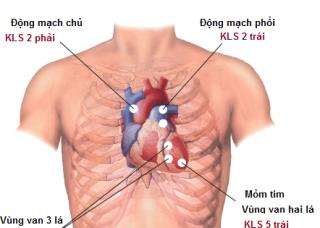 Ảnh 1 của Các tiếng thổi ở tim