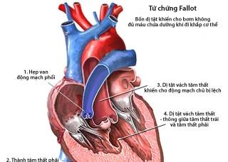 Ảnh 4 của Các tiếng thổi ở tim