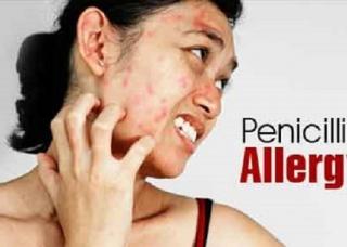 Ảnh 1 của Dị ứng penicillin