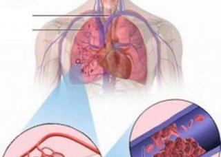 Ảnh 2 của Thuyên tắc động mạch phổi