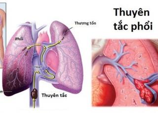 Ảnh 3 của Thuyên tắc động mạch phổi