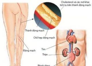 Ảnh 4 của Thuyên tắc động mạch phổi