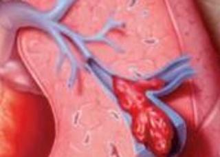Ảnh 1 của Thuyên tắc động mạch phổi