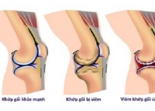 Ảnh 1 của Hội chứng đau khớp đầu gối
